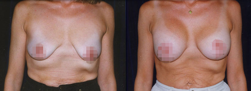 cosmetic breast lift