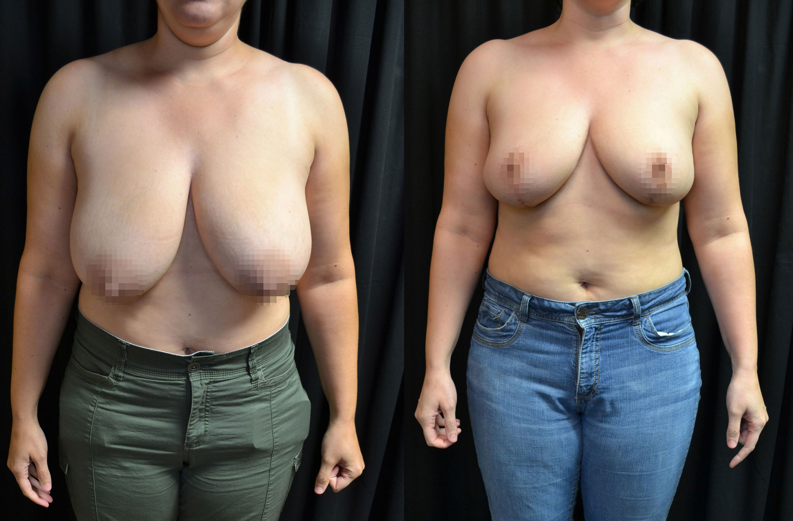 Cosmetic Breast Reduction Surgery 53