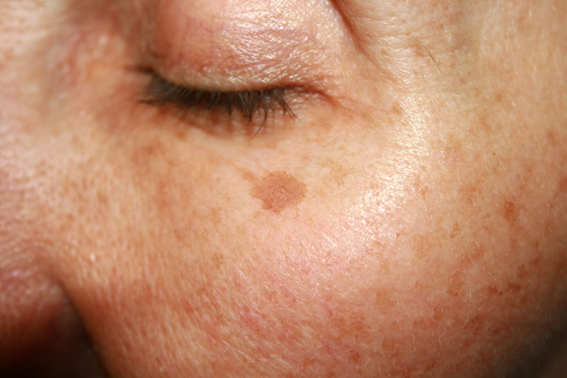 How to get rid of age spots 55