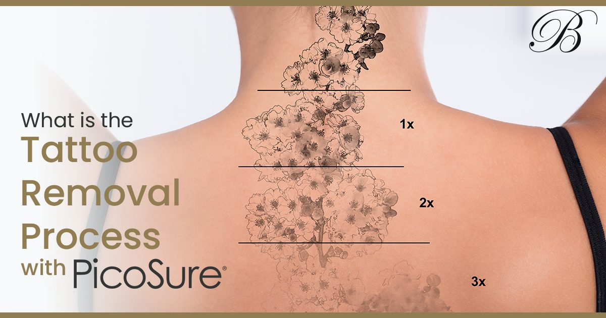 Tattoo Removal Process >> Tattoo Removal Archives Berman Cosmetic Surgery